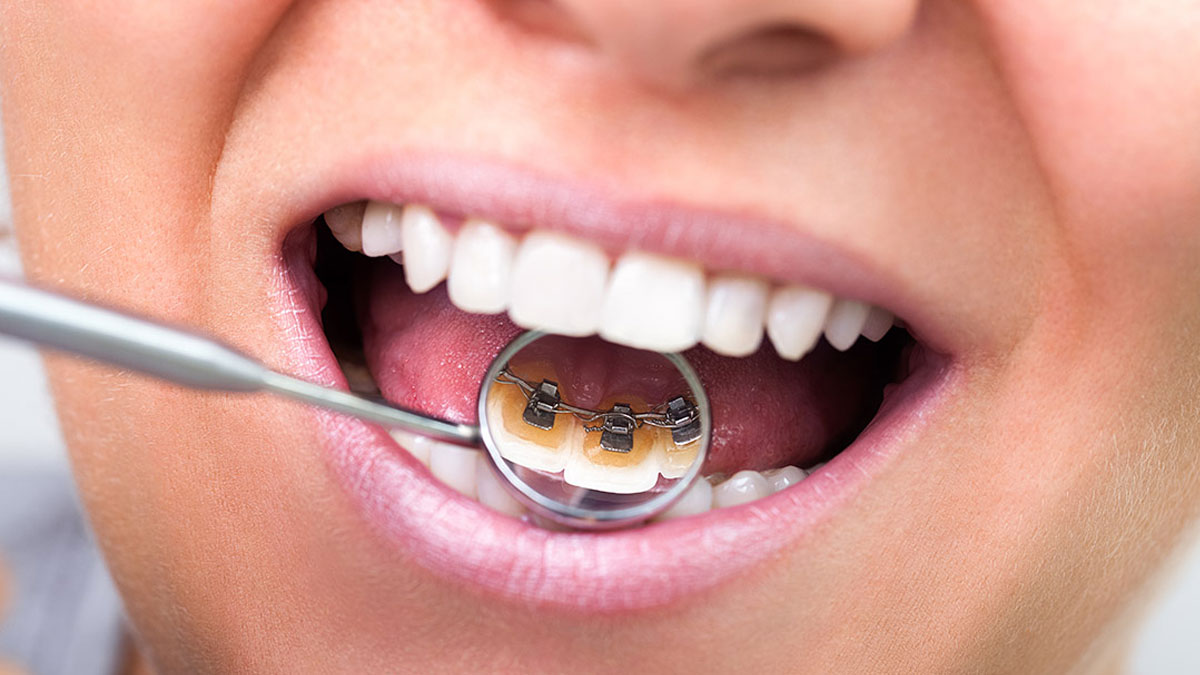Invisible Teeth Straightening Braces in Newcastle
