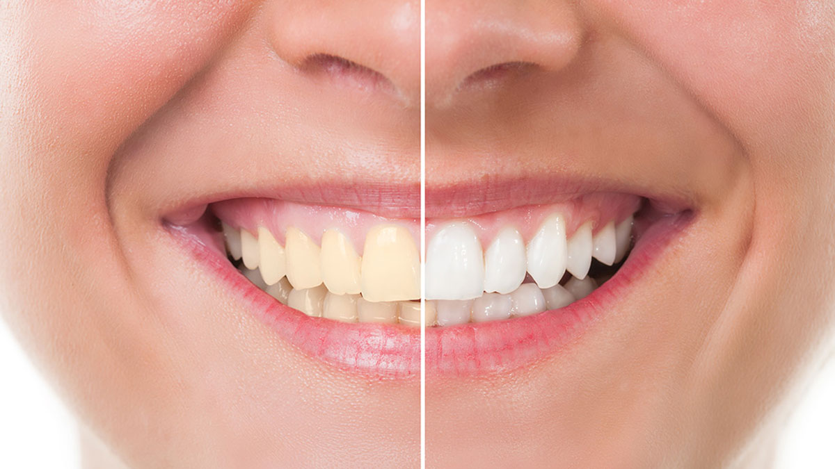 Teeth Whitening Services in Newcastle